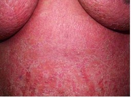 Дерматит: симптомы, 5 нозологических форм и обзор препаратов для лечения каждой из них