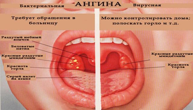 Герпетическая ангина у детей: причины, симптомы, 3 метода лечения, обзор препаратов