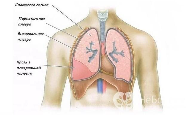 Гемоторакс: 3 основных причины, 3 группы симптомов, 2 метода лечения
