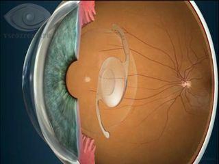Дальнозоркость: 2 формы заболевания, ведущие симптомы, 5 способов коррекции зрения