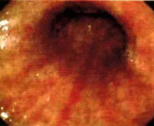 Бульбит: 5 специфических симптомов и 4 редких признаков, причины, методы лечения