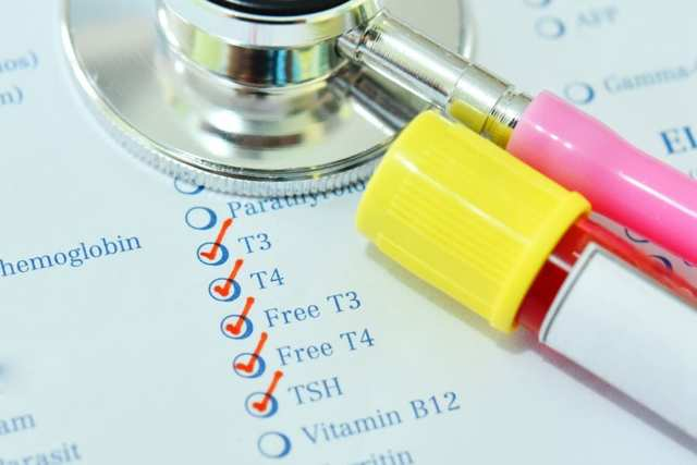 Анализы на гормоны щитовидной железы: 6 состояний, когда необходимо сдать анализ и обзор основных заболеваний щитовидной железы