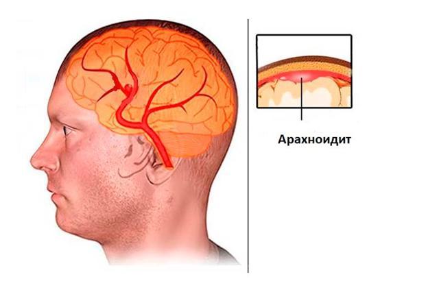 Арахноидит: 6 основных причин, 6 предрасполагающих факторов, симптомы, методы лечения