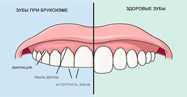 Бруксизм: 3 основных звена лечения и главные причины скрежетания зубами