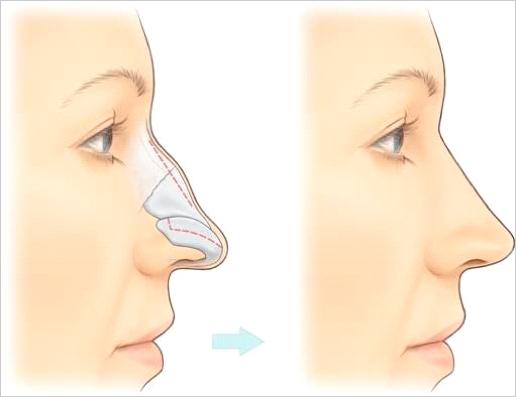 Ринопластика: 2 вида операции, 5 показаний для коррекции, особенности восстановления