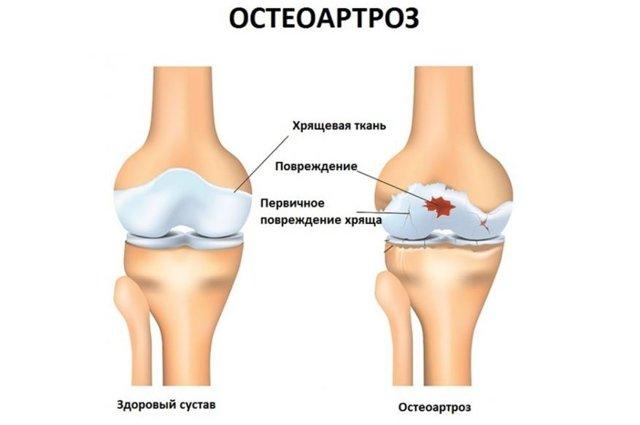Артроз: причины, 6 рентгенологических признаков, 9 способов консервативного лечения, 3 типа операций