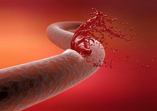 Внутреннее кровотечение: 3 главных причины и абсолютных признака, обзор 5 методов лечения