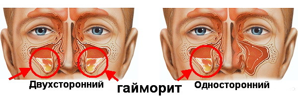 Гайморит: 6 форм, причины, 7 ведущих симптомов, 10 опасных осложнений