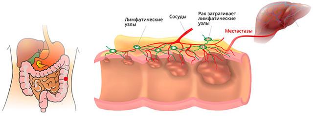 Выпадение прямой кишки: 14 причин, 4 стадии, 5 частых симптомов, 9 способов борьбы с заболеванием