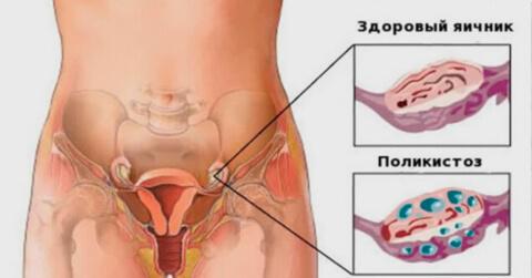 Поликистоз яичников: 7 причин появления, 5 ведущих симптомов, методы лечения
