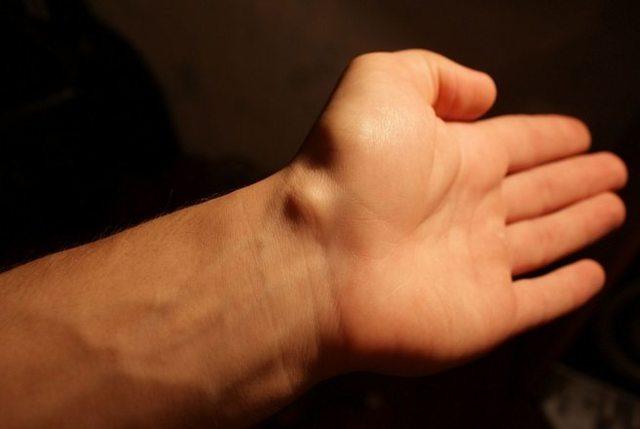 Гигрома: 5 причин, 9 видов, методы консервативного и хирургического лечения опухоли
