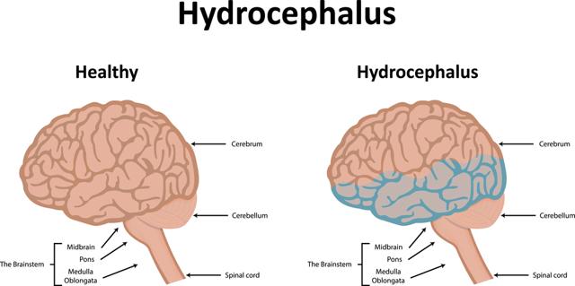 Гидроцефалия у взрослых: 8 основных причин, обзор неврологом 5 групп препаратов и 4-х методов оперативного лечения