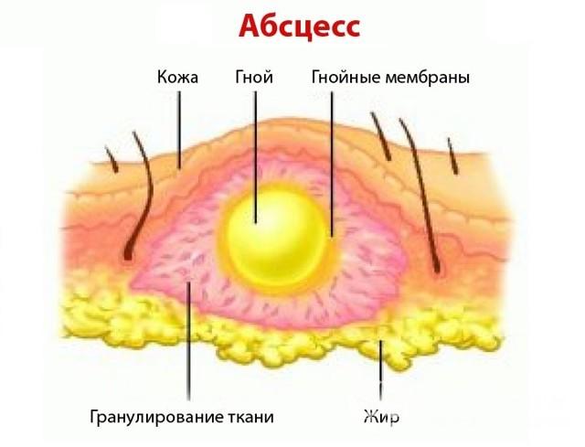 Абсцесс: причины, 5 местных проявлений, основные методы лечения