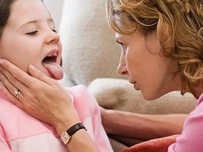 Ангина у детей: 8 принципов лечения и рекомендации практикующего педиатра
