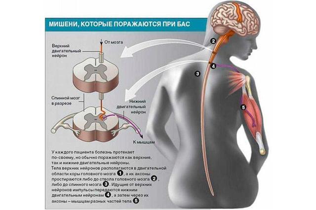 БАС (боковой амиотрофический склероз): врач-невролог в обзоре 4-х форм и возможности их лечения