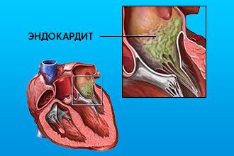 Эндокардит: 3 главных причины, основные симптомы, 2 пути лечения