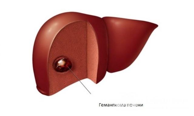 Гемангиома печени: 4 причины возникновения, 13 типичных и нетипичных симптомов, способы лечения