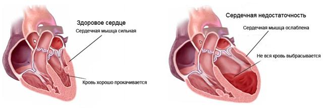Сердечная недостаточность: 3 основных направления лечения