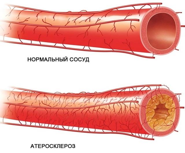Атеросклероз сосудов головного мозга: 3 группы факторов риска, 14 ведущих симптомов, 3 метода лечения