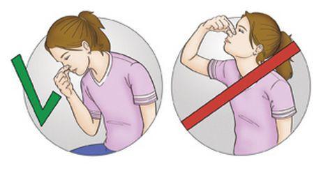 Носовое кровотечение: 5 врачебных советов и алгоритм первой помощи