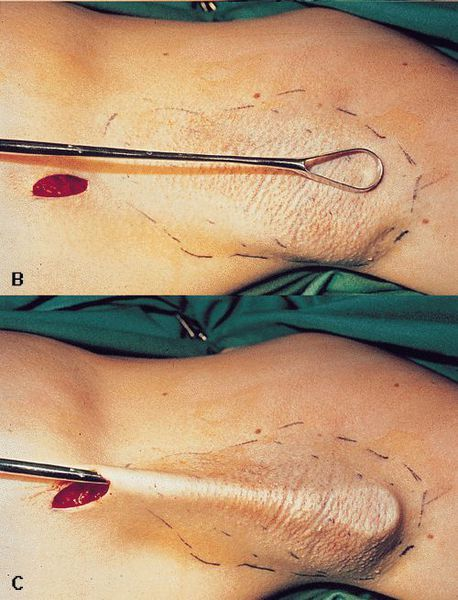Гипергидроз: 4 изолированных формы и более 10 патологий, сопровождающихся симптомом