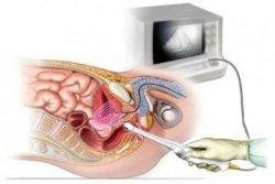 Долихосигма: 4 возможных причины развития болезни и 5 ступеней диагностики