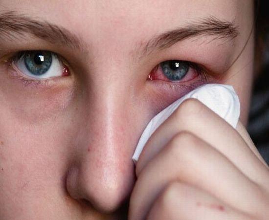 Аллергический конъюнктивит: 5 форм и 6 ведущих симптомов, позволяющих быстро поставить диагноз