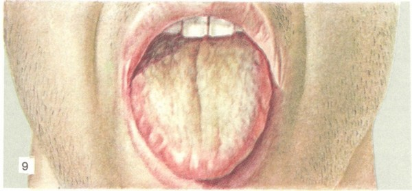 Брюшной тиф: 3 пути распространения, симптомы, 2 способа лечения