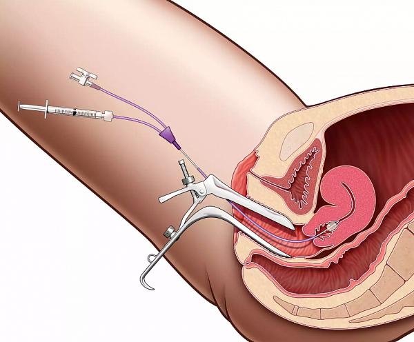 Кольпит симптомы и лечение у женщин: 8 современных способов диагностики