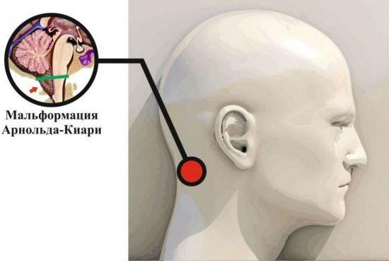 Аномалия Арнольда Киари: причины, 6 синдромов, методы лечения