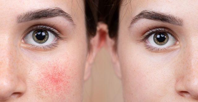 Амилорея - симптомы, диагностика, причины появления, лечение заболевания