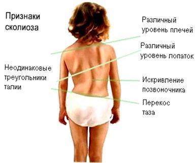 Клиновидные позвонки - симптомы, диагностика, лечение заболевания