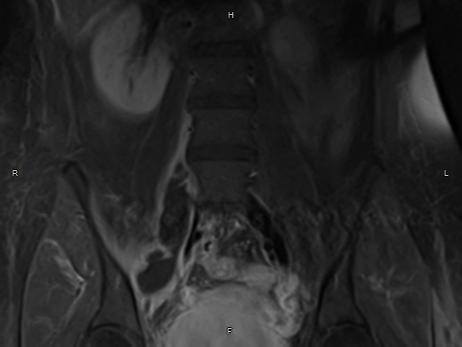 Аппендикулярный абсцесс - симптомы, диагностика, лечение заболевания