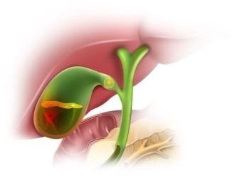 Эмпиема желчного пузыря - симптомы, диагностика, лечение заболевания