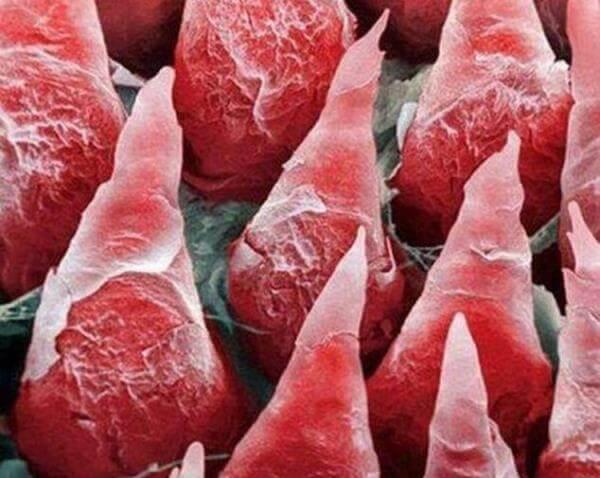 Черный волосатый язык - симптомы, диагностика, лечение заболевания