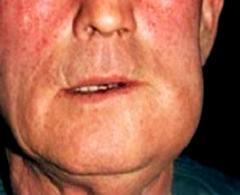 Периостит - симптомы, диагностика, лечение заболевания