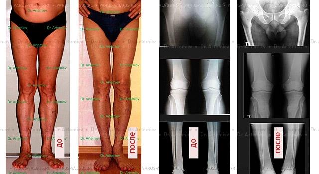 Х-образные ноги - симптомы, диагностика, лечение заболевания