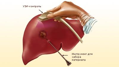 Некроз печени - симптомы, диагностика, лечение заболевания