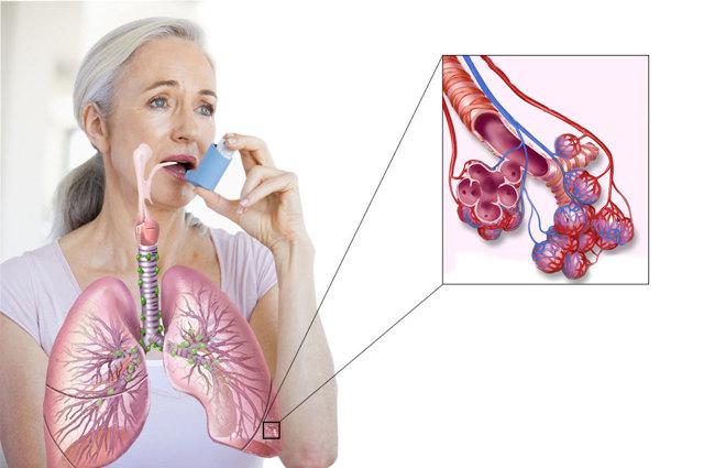 Смешанная бронхиальная астма - симптомы, диагностика, лечение заболевания