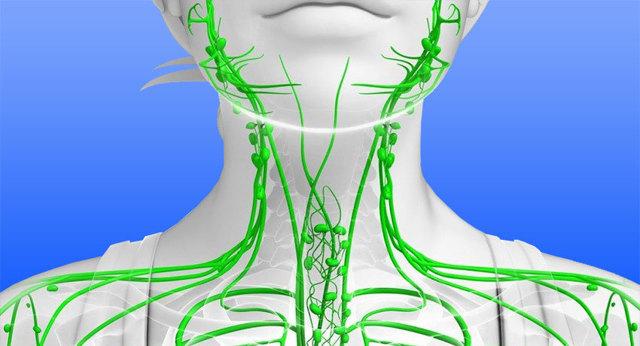 Флеболиты - симптомы, диагностика, лечение заболевания